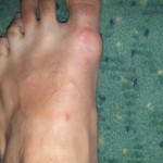 Piqûre par une punaise de lit sur le pied